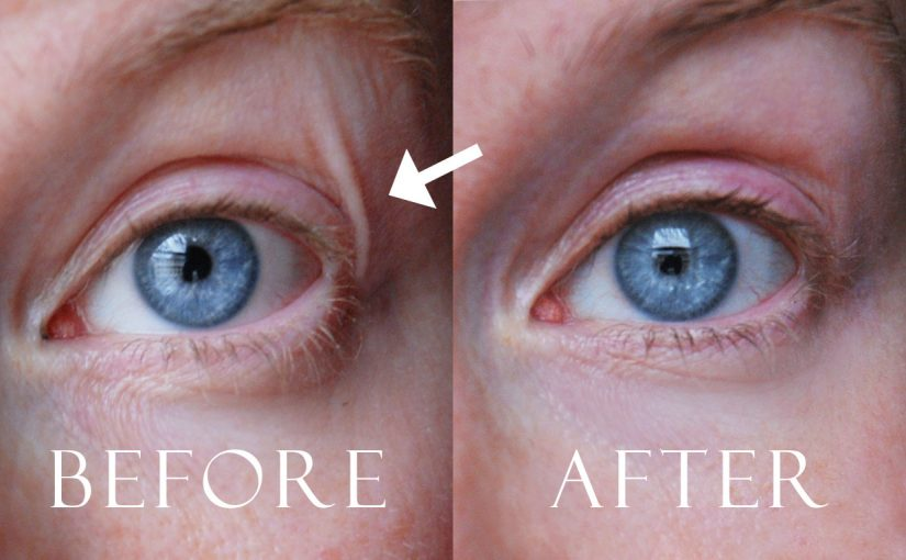 Before and after images. My wrinkles are gone! Korean skin care. K-beauty Europe