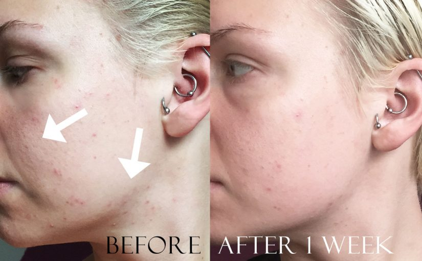Before & After photos Young combination skin 20+ using Korean skincare after 1 week. Acne combination troubled skin k-beauty Europe