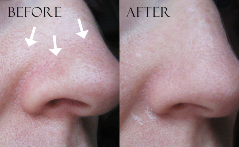 Before and after images: TonyMoly Egg Pore Nose Pack Package