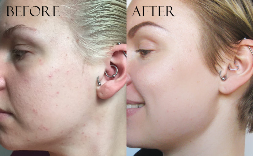Combination acne prone skin before and after photos using Korean skin care. K-beauty Europe