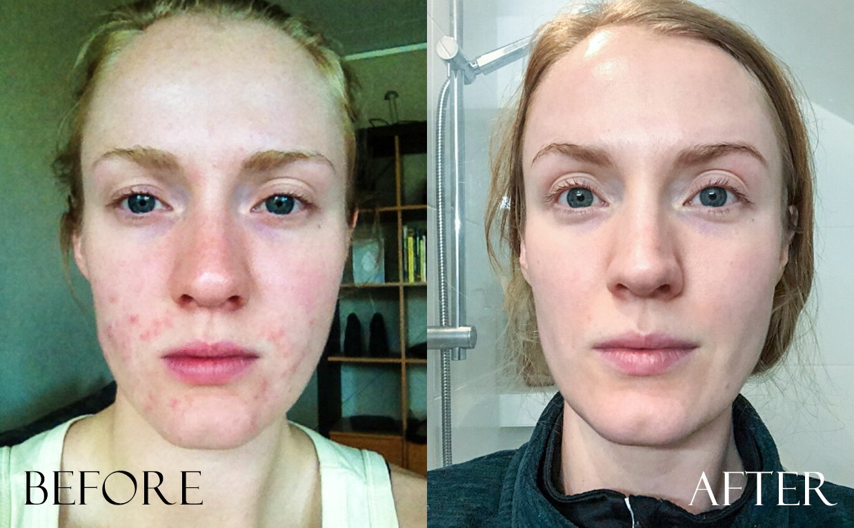 before amp after photos irritated sensitive troubled skin