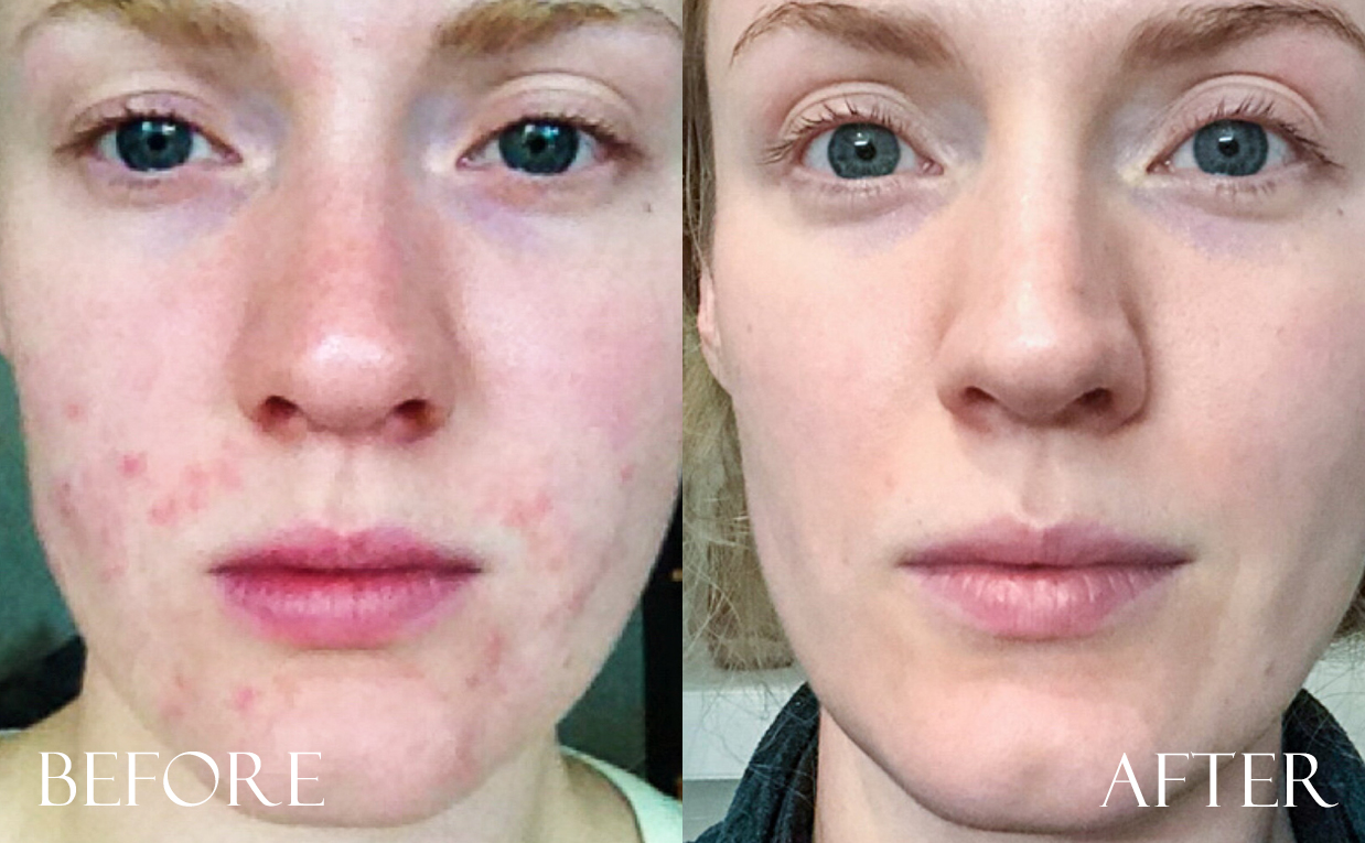 Before and after photos Korean skin care Irritated sensitive troubled skin acne pimples redness irritation K-beauty Blog Europe